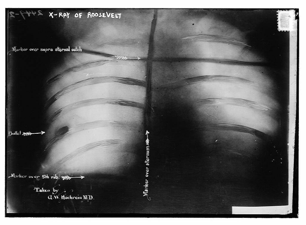 X-ray of Teddy Roosevelt showing the bullet where he let it lie.